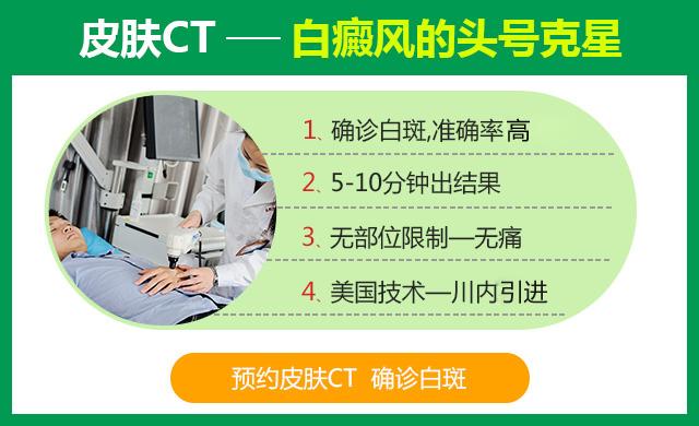 白癜风治疗技术