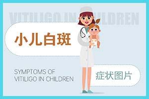 3岁的儿童白殿风的病因是什么-怎么治疗好