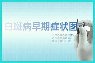 中医治疗白癫风有什么办法-如何治疗白斑